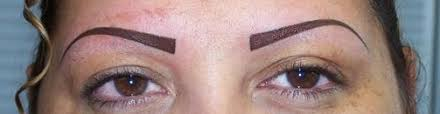 permanent makeup eyebrow tattoo removal clean slate laser