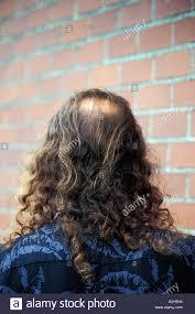 bald spot stock photos u0026 bald spot stock images alamy