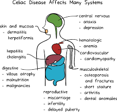 what is celiac disease article khan academy