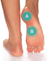 plantar fasciitis symptoms treatment causes and prevention