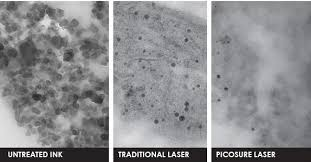 another way to get rid of acne scars tattoo removal laser
