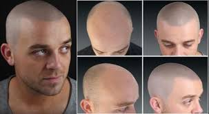 pics of scalp micropigmentation on people with long hair getting real series going bald and scalp micropigmentation