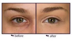 how to apply under eye concealers before applyingunder eye concealer and after