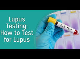 Testing Report Sle by Lupus Symptoms Testing By Ds Dna And Lupus Treatments