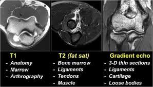 Sagittal Brain Mri Anatomy The Radiology Assistant Elbow Mri