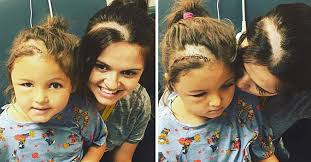 hairstyles for brain surgery patients we re in this together mom shaves her head in solidarity with