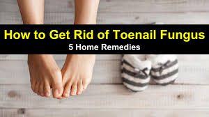 how to get rid of toenail fungus 5 home remedies