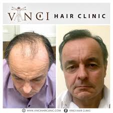 how are female celebrities dealing with thinning asg ing hair the 25 best hair transplant surgery ideas on pinterest best