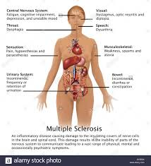 Picture Diagram Of The Human Body Diagram Showing The Symptoms Of Multiple Sclerosis And Their