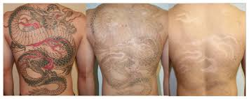 laser tattoo removal u2013 cosmetic plastic surgery facts u0026 latest news
