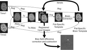 detection of focal longitudinal changes in the brain by