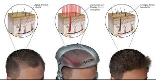 low level light therapy hair hair regrowth regrow hair at home with igrow red light therapy