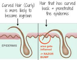 what is ingrown hair pictures symptoms severe hurting itchy