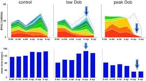 segmental analysis of color kinesis images circulation