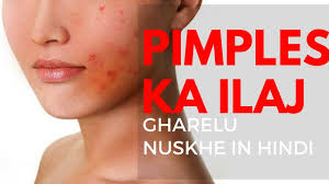 म ह स क उपच र pimple treatment for oily skin in