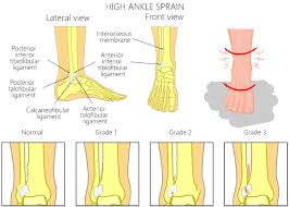 Anterior Tibiofibular Ligament Injury Syndesmosis High Ankle Sprain Injuries Scientific Rehab