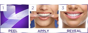 5 best teeth whitening kits of 2017 the smartest buyer