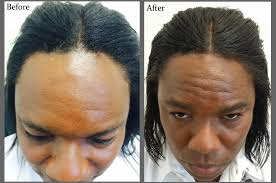 african american hair transplant solutions for men s hair loss hair restoration in florida