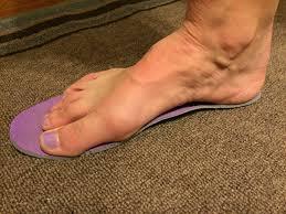 news fenton foot care part 3