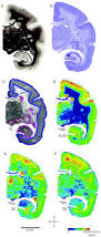 Whole Brain Metallomic Analysis Of The Common Marmoset