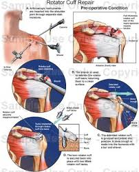 Anatomy Of Rotator Cuff Rotator Cuff Repair Medical Illustration Human Anatomy Drawing