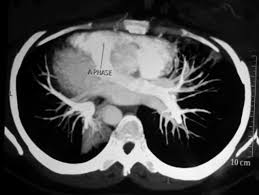 Radiology Of Thorax Contrast Enhanced Ct Scan Of Thorax Axial View Showing Pulmonary
