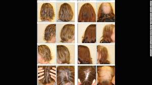 hair colour u can use during chemo how some women avoid hair loss during chemotherapy cnn