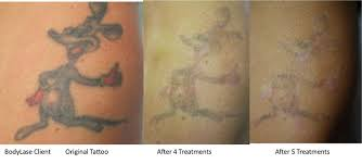 tattoo removal before and after1 bodylase med spa raleigh u0026 cary nc