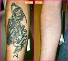 laserless tattoo removal methods tattoo tattoo removal and diy