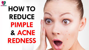 Face Mapping Acne How To Reduce Pimple U0026 Acne Redness Health Sutra Youtube