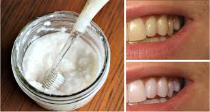 watch your teeth get white in just 2 minutes with this home remedy
