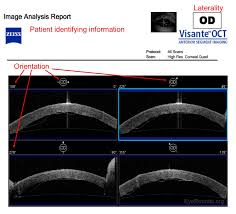 corneal imaging an introduction
