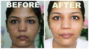 blue light for acne side effects immediate skin lightening how to use bleach skin care routine