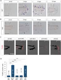 transient inflammatory response mediated by interleukin 1β is