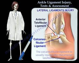 Ankle Anatomy Ligaments Ankle Ligament Injury Tests U0026 Assessment Everything You Need To