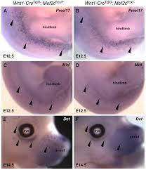 the mads box transcription factor mef2c regulates melanocyte