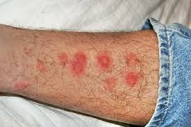 Bed Bug Home Remedies How To Get Rid Of Bed Bugs