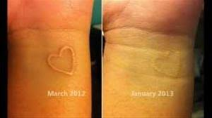 white ink tattoos by vanish laser tattoo removal and skin aesthtics