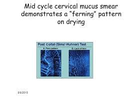 ferning pattern in spanish infertility edward illions m d associate professor ppt video