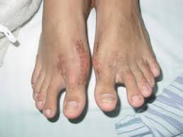 allergies to titanium term fever after hallux valgus surgery secondary to titanium