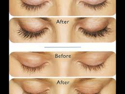 latisse bimatoprost eyelash growth before and after youtube