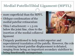 Lateral Patellar Ligament Medial Patellofemoral Ligament Mpfl Reconstruction 2014