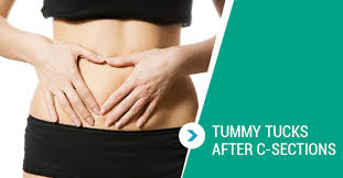 stomach muscles after c section how soon after a c section can i get a tummy tuck lakeview