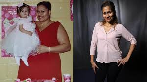 losing weight after gastric bypass weight gain how many calories