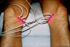 muskelschwäche beine acp in graz sport arthrose fersensporn faszien entzündung