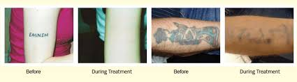 tattoo removal grays dartford rochester kent up 2 scratch