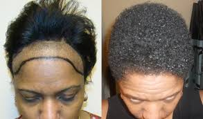 hair transplant for black women african american woman patients page dr brett bolton