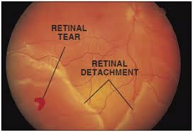 Comfort Solutions Vitrectomy Retinal Detachment Tears And Breaks