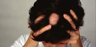 causes alopecia areata and can you treat this type of hair loss