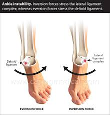 Lateral Collateral Ligament Ankle Chronic Ankle Sprain And Instability Treatment U2013 Caring Medical